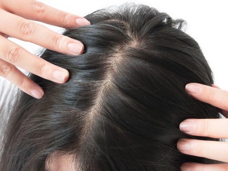 strata vlasov